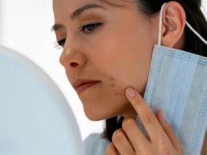 Pokožka pod respirátory a rouškami trpí. Pozor na stres a důkladně čistěte pleť, radí jihlavská lékařka